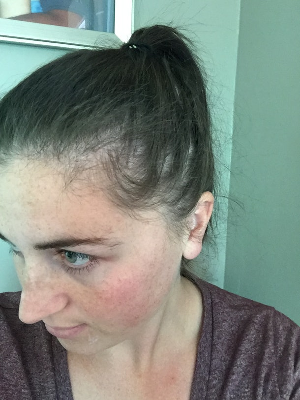 Honestly My Postpartum Hair Loss Made Me Feel Ugly