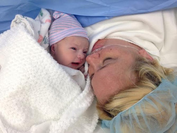 My C-Section Incision Finally Healed — 10 Months After My ...
