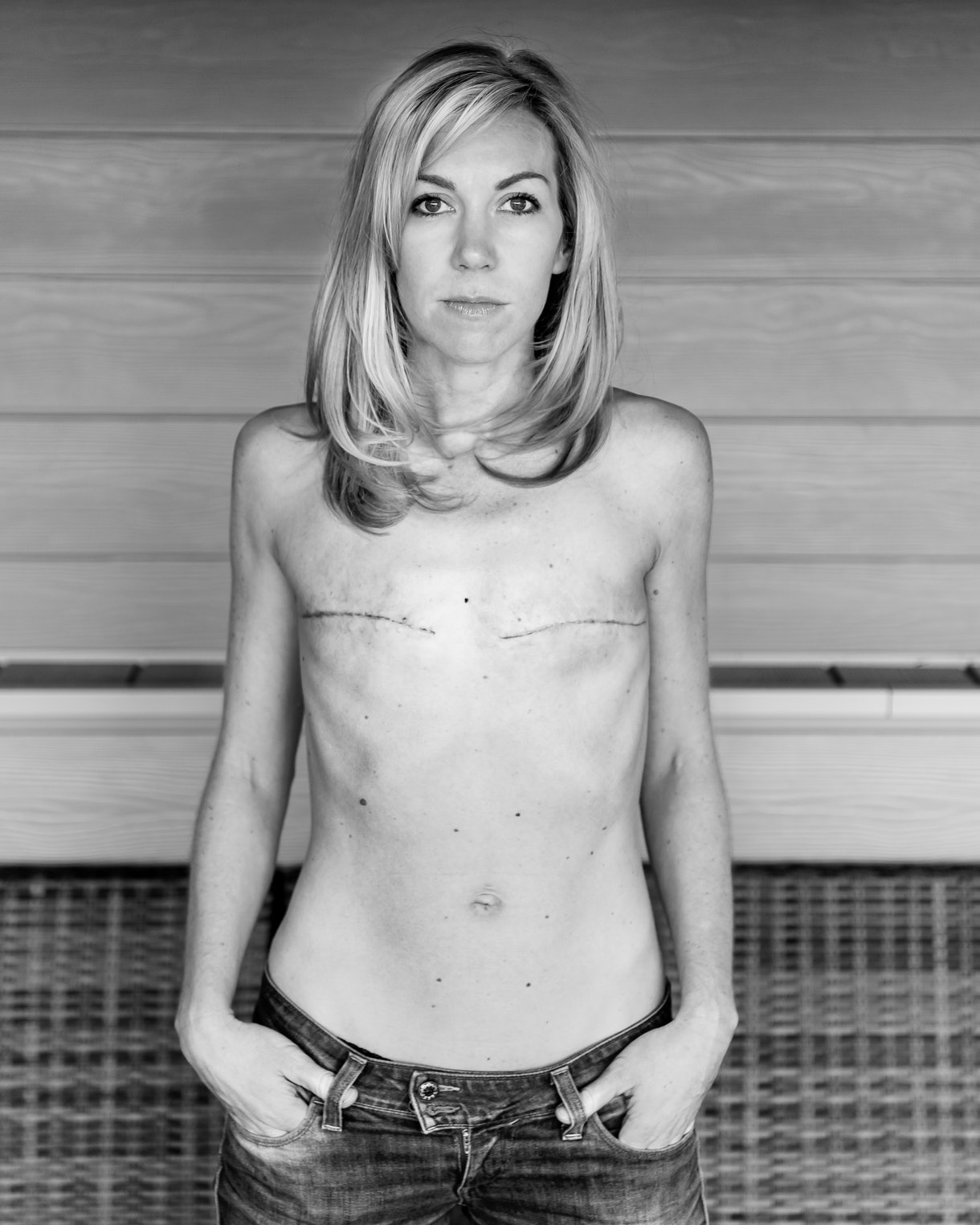 breast cancer awareness month confident caucasian woman double mastectomy scars