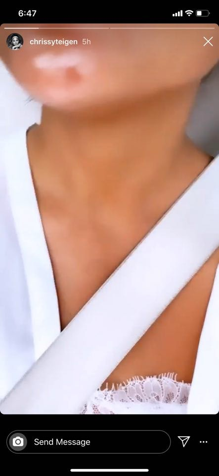Chrissy Teigen zoomed in to show a blemish in her Story