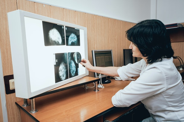 Doctor examine mammography test. Medical equipment at the hospital. Background