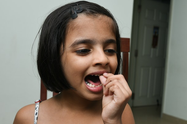 Little / small Indian girl / child / kid, weeping / crying pain showing lost deciduous / broken tooth /  first baby milk / temporary teeth, India. Painful, child caries. Dental medicine, healthcare.