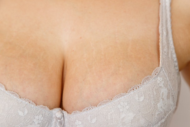 Stretch marks on the breast in white bra of a 24 year old girl after 2 years of hormonal treatment. Concept for medicine and cosmetology.